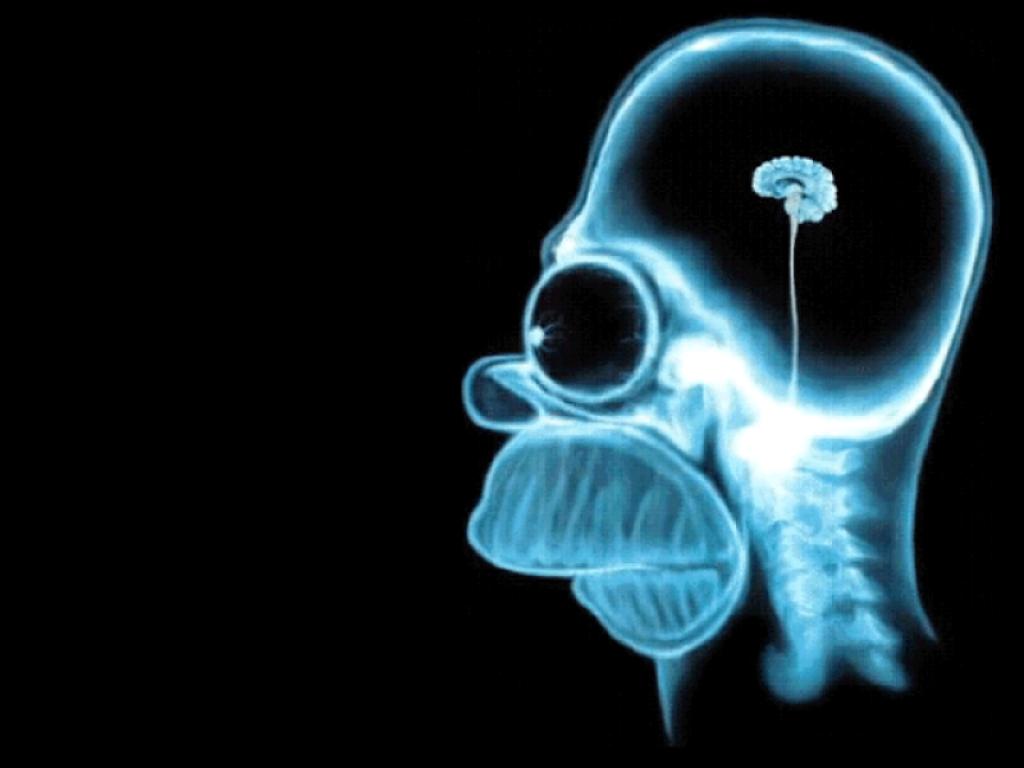 Homer,Simpson,radiografia,lastra,cervello,high,density,brain